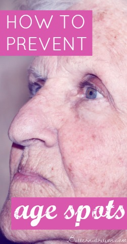 5 Ways to Prevent Age Spots | Butter Nutrition
