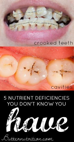 5 Nutrient Deficiencies You Don't Know You Have! Plus, How To Fix Them! | Butter Nutrition