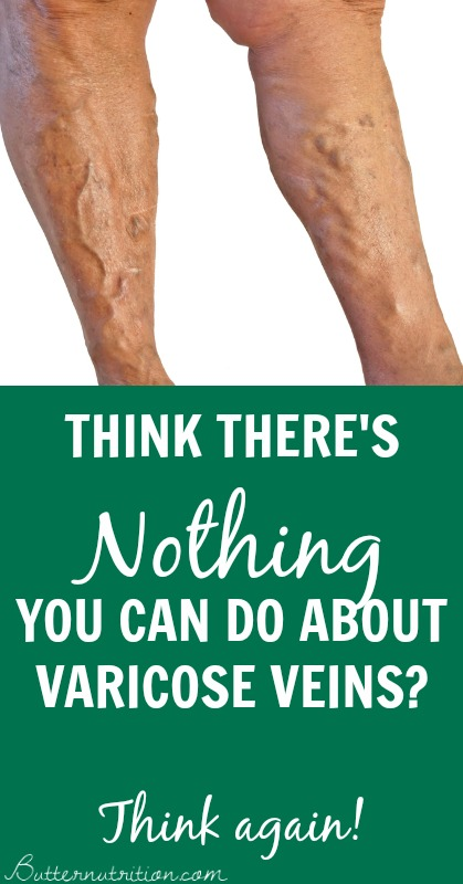 Think there's NOTHING you can do about VARICOSE VEINS? Think again!   Butternutrition.com