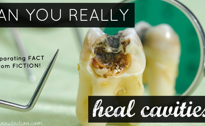 Dental Truths and Myths: Can you REALLY heal cavities? And more