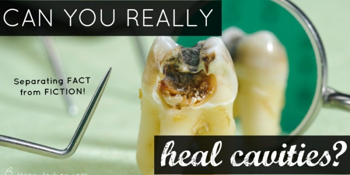 Can you really heal cavities? Separating FACT from FICTION   Butter Nutrition