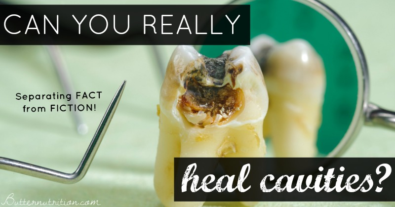 Can you really heal cavities? Separating FACT from FICTION | Butter Nutrition