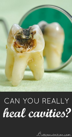 Can You Heal A Tooth Infection Naturally