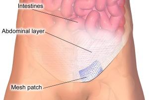 inguinal-hernia-mesh-repair
