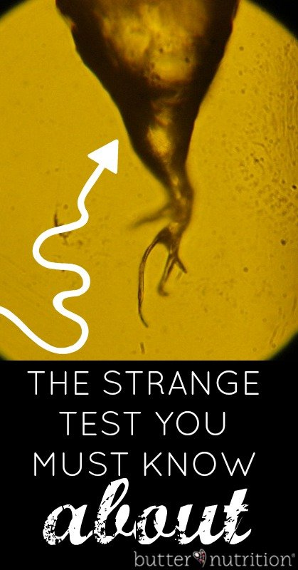 Hair Analysis: The Strange Test You Must Know About | Butter Nutrition